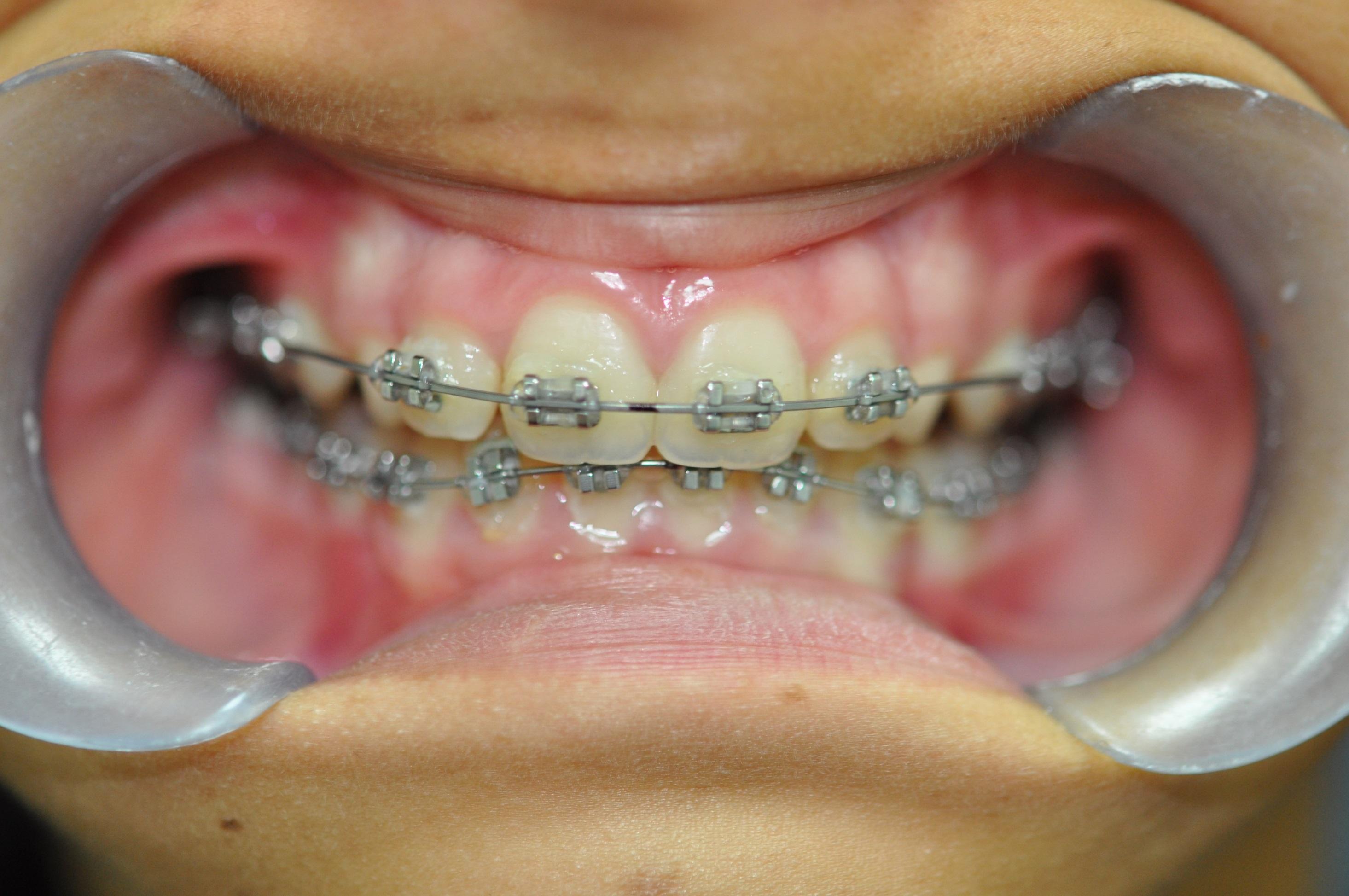 Fixed Metal Braces - TP Dental