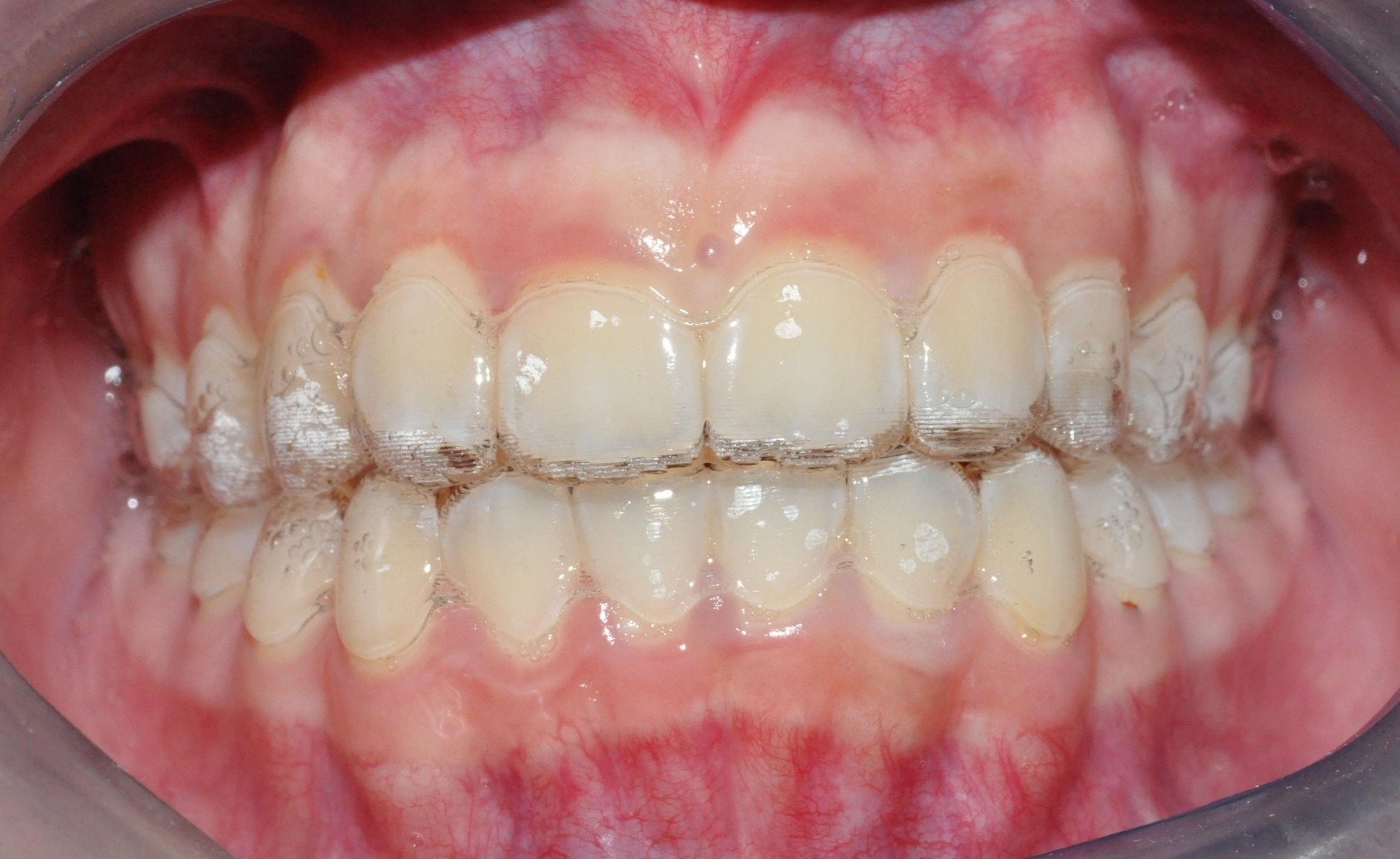 Invisalign Braces for Teens - TP Dental