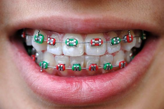 Fixed Ceramic Braces by TP Dental
