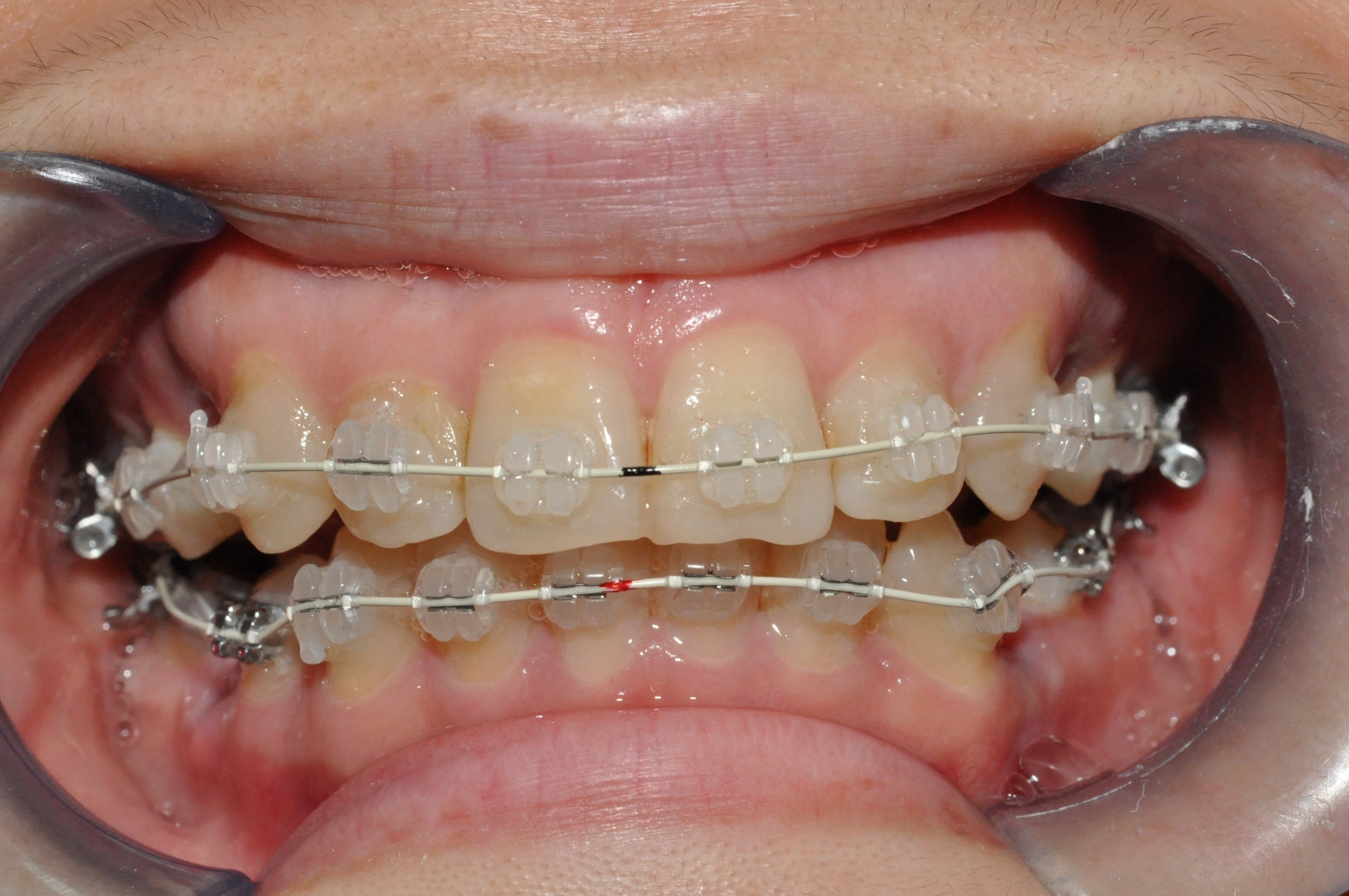 Fixed Ceramic Braces - TP Dental